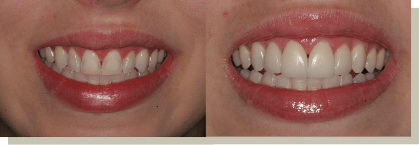 Direct Bonding Front Teeth