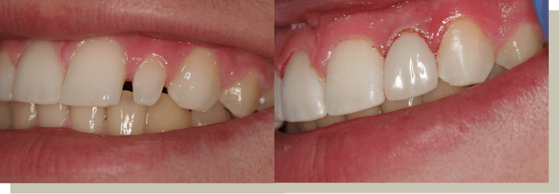 Direct bonding on lateral tooth