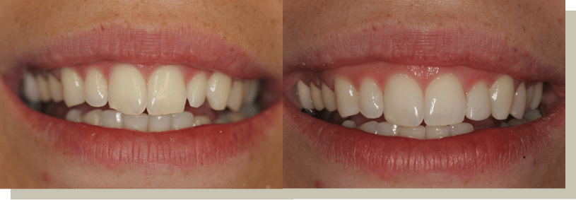 Direct bonding on front teeth